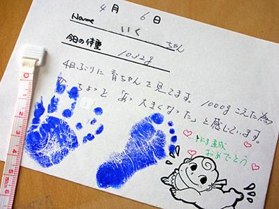 超未熟児だった娘の1000g頃の足形
